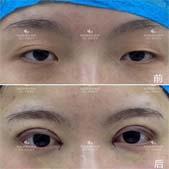 SML靈動璀璨美眼案例:醫生給我帶來的雙眼皮 實在是太棒了