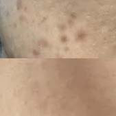 激光祛痘案例 2个月的时间皮肤不再脆弱