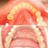 一位工程设计师的种植牙过程 种植牙和真牙没什么差别