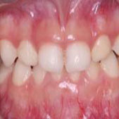 长达1年的地包天矫正治疗后 牙齿终于恢复正常了
