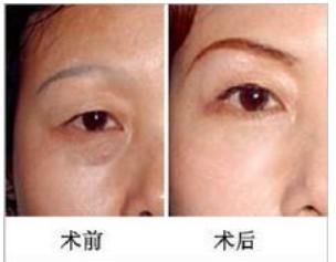 宜春天泽医院切眉提眉术的价格介绍图片