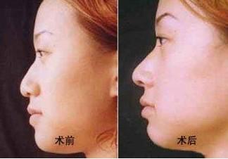 鹰钩鼻矫正的对比图