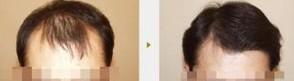 头发种植的对比图