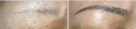 纹眉的对比图