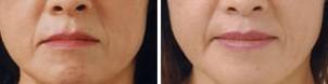 口角成形术的对比图