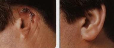 全耳再造的对比图