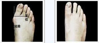 足拇外翻矫正术的对比图
