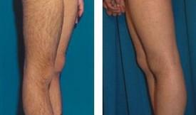 激光大腿脱毛的对比图