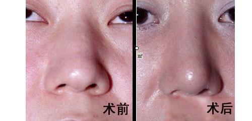 山东大学第二医院美容整形烧伤外科鼻翼整形的价格:   摘要:整形已成