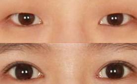 韩式无痕双眼皮对比图