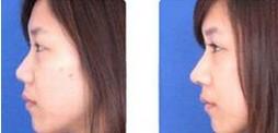 假体隆鼻对比图