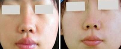 鼻孔缩小对比图