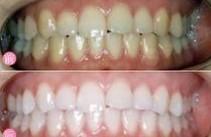 冷光美白牙齿对比图