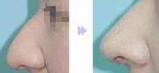 鹰钩鼻整形对比图
