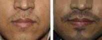 胡须移植对比图