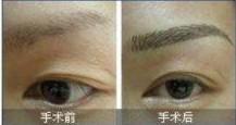 眉毛移植对比图
