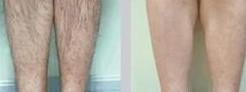 激光脱腿毛对比图
