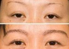 种植眉毛对比图