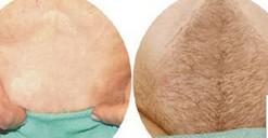体毛种植对比图
