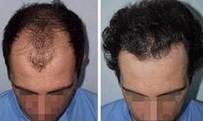 头发加密对比图