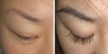睫毛种植对比图