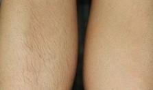 榆林激光脱毛对比图