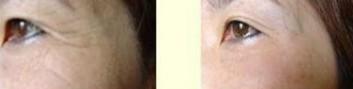 榆林爱贝芙除皱对比图