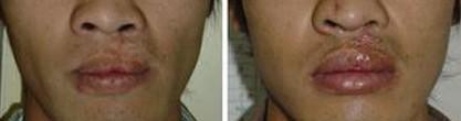 兰州唇裂修复术对比图