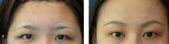 兰州眉毛种植对比图