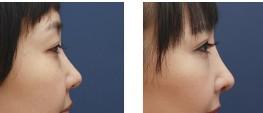 兰州假体隆鼻对比图