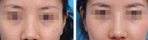 榆林鼻部再造对比图