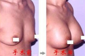榆林乳房下垂矫正对比图