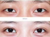 兰州韩式双眼皮对比图
