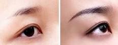 榆林切眉术对比图