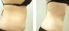榆林吸脂瘦腰对比图