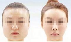 榆林改脸型对比图