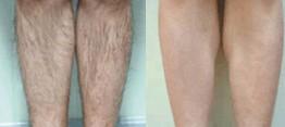 榆林冰点脱腿毛对比图