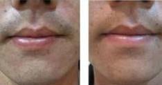 榆林激光脱胡须对比图