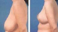 兰州乳房下垂矫正对比图