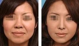 兰州韩式改脸型对比图