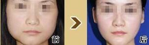 榆林瘦脸针对比图