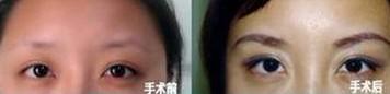 榆林眉毛种植对比图