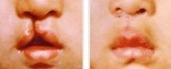兰州兔唇整形对比图