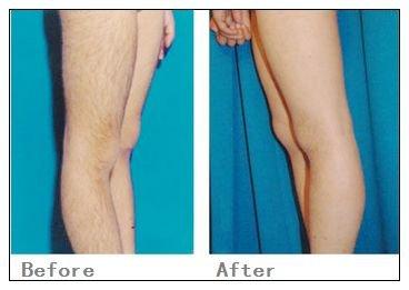 兰州韩美整形美容医院激光腿部脱毛的术后护理