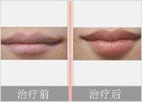 兰州韩美整形美容医院唇珠成形术的术后护理