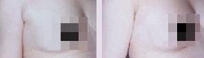 兰州亚韩医学整形美容副乳切除的优势