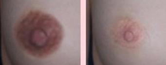 兰州亚韩医学整形美容激光祛痘的禁忌人群