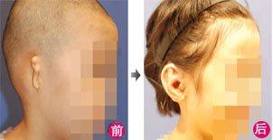 兰州崔大夫医疗美容诊所耳部再造术的适应症