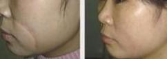 榆林激光去疤痕对比图