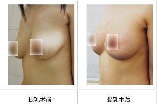 兰州韩美整形美容医院乳房下垂矫正术的术后护理